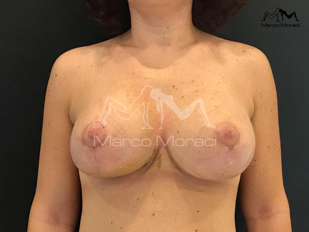immagini gallery moraci mastopessi2