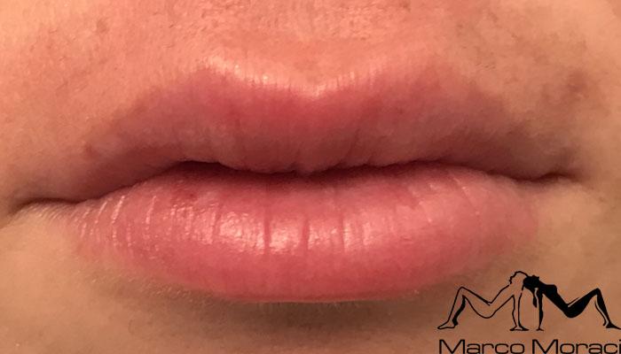 aumento-labbra-dopo1