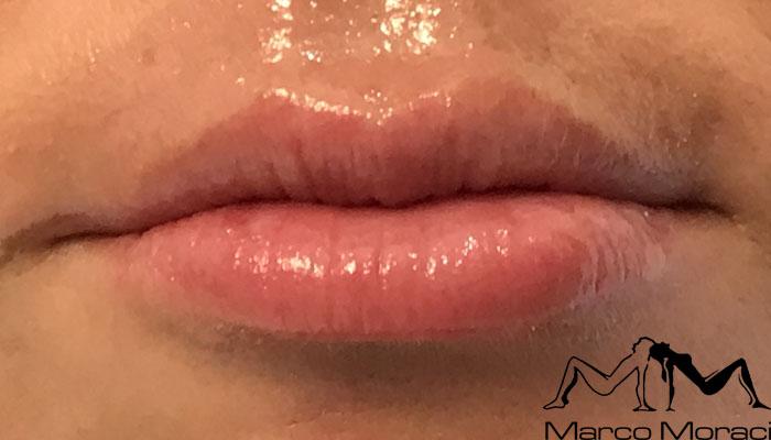 aumento-labbra-prima